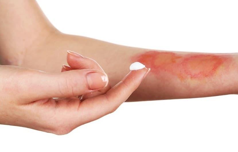 درمان های خانگی موثر برای سوختگی پوست