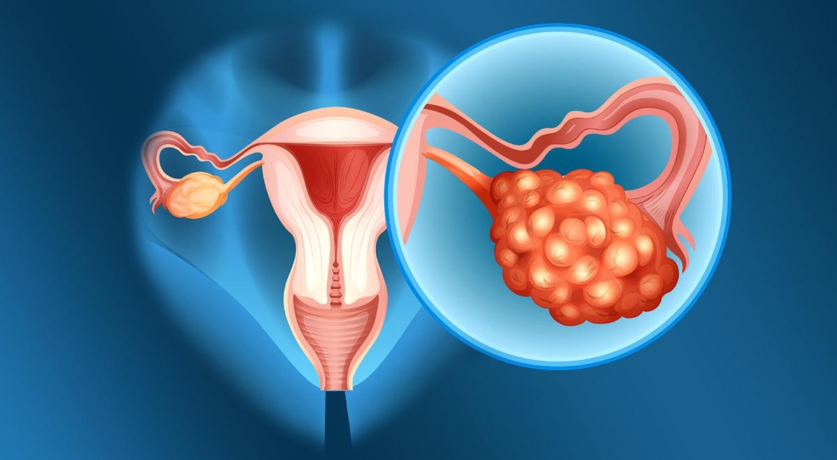 داروهای گیاهی برای درمان کیست تخمدان
